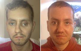 <p><b>3D-PRINTET ANSIKT:</b> Stephen Powers ødela ansiktet i en motorsykkelulykke. Nå har han fått printet ut og operert inn et nytt ansiktsben (til høyre).</p>