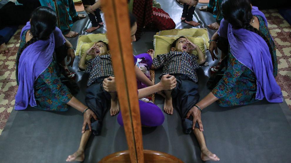 <p><b>BEHANDLING:</b> En gutt får behandling på et rehabiliteringssenter støttet av Bhopal Medical Appeal.</p>
