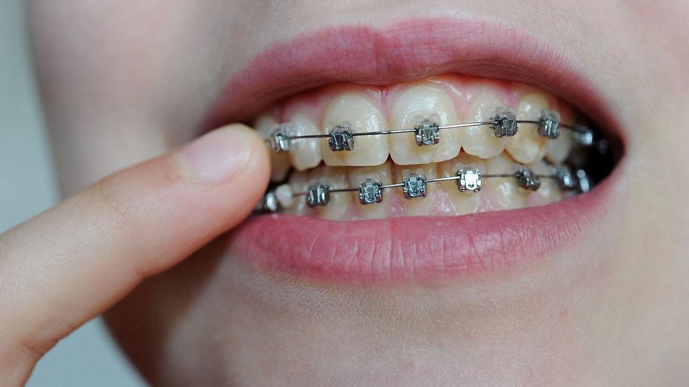 dentist Slotsgade odense regulering ved endetarmen